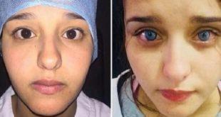 Casablanca : Une marocaine change la couleur de ses yeux !